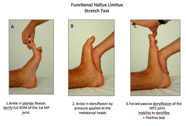 stretches for people suffering from a stiff big toe