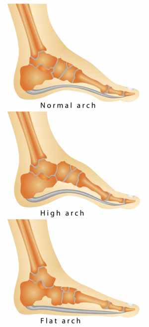 Picture of foot arch shape and bone structure beneath