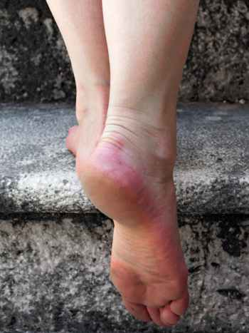 Feet on Concrete Stairs
