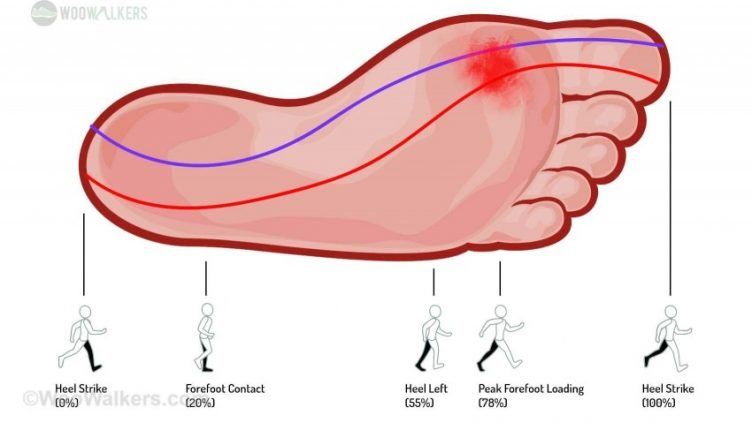 Image of Overpronator Foot Pressure Transfer Through Gait Cycle